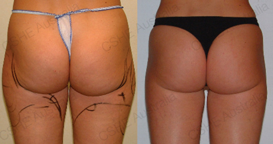 Body Shaping Ultrasound Smoothes Cellulite