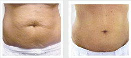 herbal body wrap reduces the appearance of cellulite